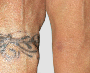 Tattoo Removal – 5 Techniques to Cleanse your Inked Regrets