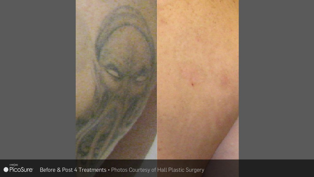 SKIN TREATMENT IN SYDNEY FOR MEN & WOMEN