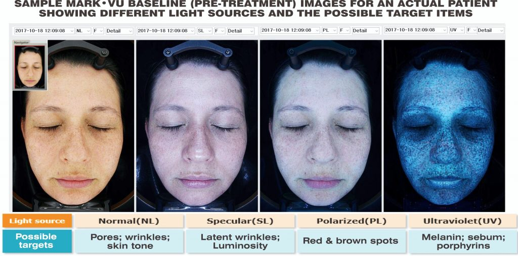 Best Laser Skin Treatment Clinic for Men and Women