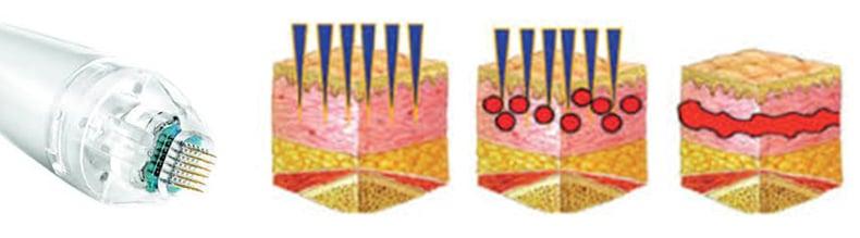 Skin Resurfacing Tightening Treatment